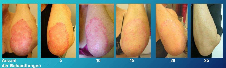 eissauna Krankheit Schuppenflechte Psoriasis Gesundheit Allergien